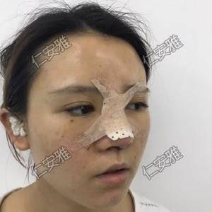 仁安雅鼻综合