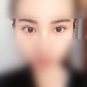双眼皮让我变的更加美丽