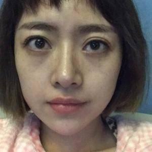 双眼皮修复+提肌