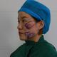 我是医院的一名工作人员,见证了太多的求美者的变化,很久之前就拜托赵主任也帮我修饰下脸型,赶上今天赵主任有时间,说做就做...