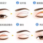 双眼皮到底做全切好还是微创好?