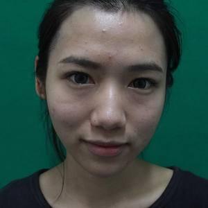 玻尿酸注射鼻子+下巴