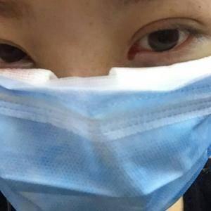 【重庆联合丽格美容医院】对于眼袋你到底了解多少