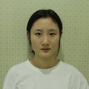 【长沙美研家的精致鼻部综合日记】
