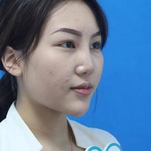 软骨综合鼻+面部清脂