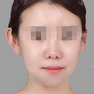 美神-拉皮手术