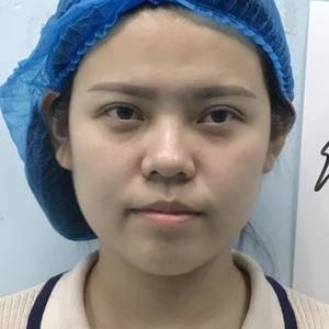 日记本:线雕隆鼻