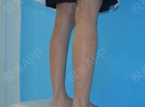 瘦腿针术后7天_瘦小腿术后7天_美体塑形术后7天_追风少年陈敏掠分享图片2
