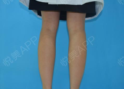 瘦腿针术后7天_瘦小腿术后7天_美体塑形术后7天_追风少年陈敏掠分享图片3