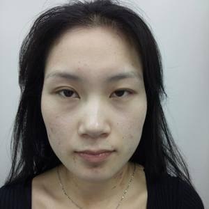 隆鼻+双眼皮