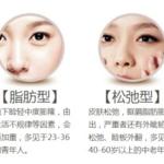 眼袋形成的原因及治疗方法