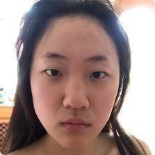 青岛伊美尔刘长发双眼皮+开眼角