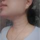 做的是微针祛颈纹,美找到这个项目,祛颈纹术后3天了,颈纹相比之前淡了不少,做完术后当天是发红,第二天...