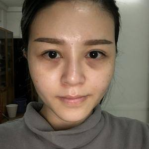 广州健丽不开刀祛眼袋