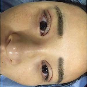 双眼皮修复