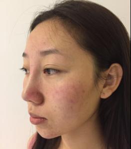 鼻综合是对整个鼻子进行综合多方面修整