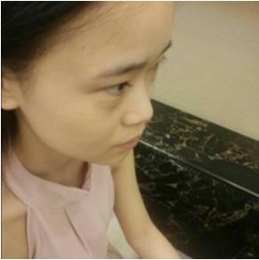 假体隆鼻+自体耳软骨垫鼻尖