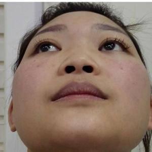 日记:鼻综合手术
