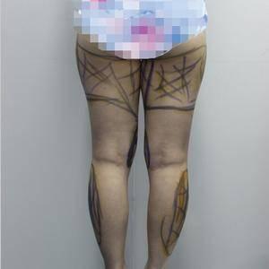 德国水动力腿部吸脂