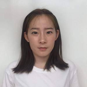 济南艺星美杜莎TTL显微美眼术双眼皮