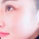【长沙素妍医疗美容】今天是术后第137天啦,给宝宝们看看术后的恢复情况啦,今天化了个美美的妆没出来跟朋友聚餐啦~大冬天的...
