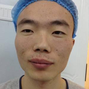 歪鼻矫正,顺便还做了自体脂肪面部填充