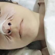 隆鼻手术!!