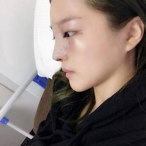 隆鼻手术中