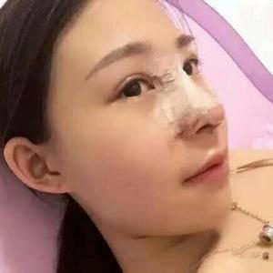鼻子手术!
