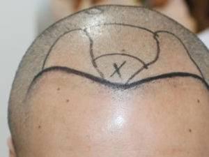 美贝尔种植头顶毛发