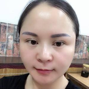 瘦脸玻尿酸填充太阳穴伊婉v