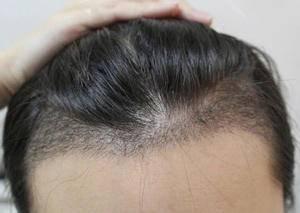 美贝尔种植发际线