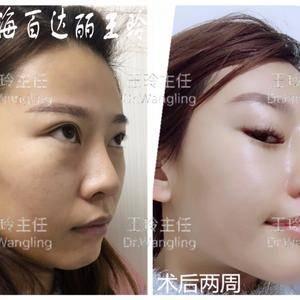 王玲医生【鼻综合修复+内切祛眼袋】案例分享