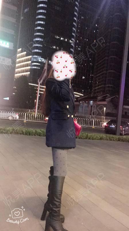 深圳仁安雅宝利太吸脂262天。前一段时间去北京出差。所以很久没来更新日记,现在天气也比较冷了,也没有那么多露白花花的大床...