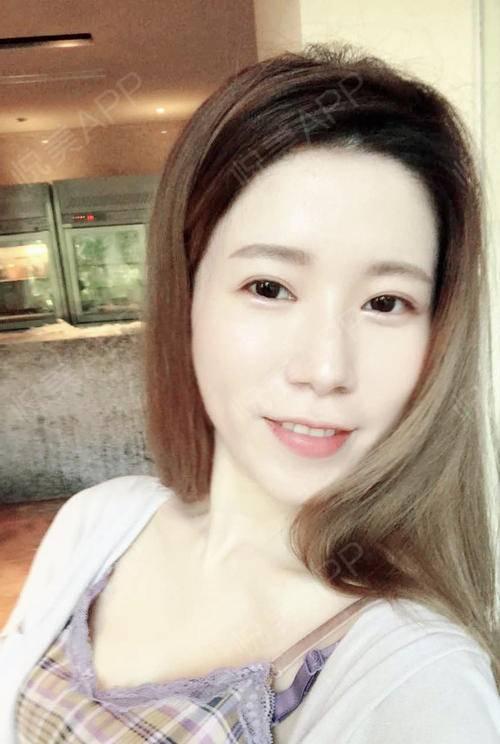 我做的项目是:全脸脂肪填充;医院:上海百达丽;医生:顾建成。好久没有来更新了,因为定型好久了,也没什么好说了的感觉。要过...