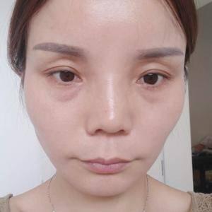 【健丽-激光祛眼袋】