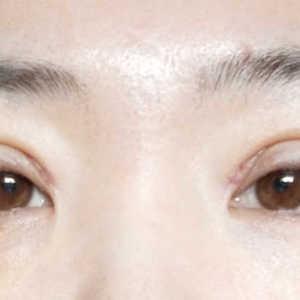 双眼皮重塑