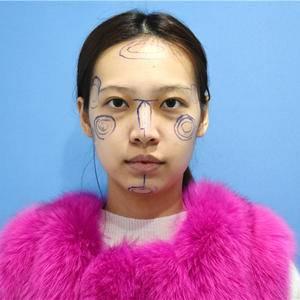 隆鼻和自体脂肪面部填充日记