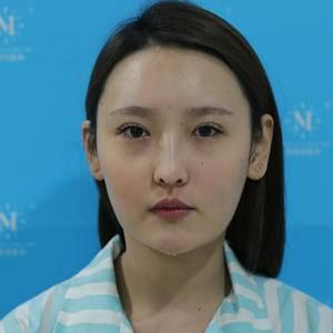 """美丽日记""""3.11""""射频溶脂瘦脸"""
