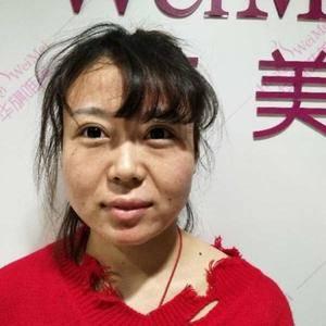 瘦脸针术后