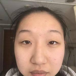 邵玉芳医生 双眼皮加内眼角