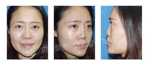 达拉斯隆鼻_达拉斯隆鼻与普通隆鼻手术有什么区别_悦美整形