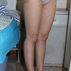 军大吸脂瘦大腿