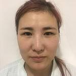 北京亚韩整形医院、脂肪填充、手术当天每日忙着工做生活日常也注重保养就是效...