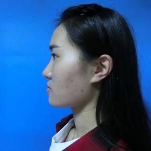 福州 鼻综合整形