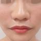 医生说超声刀做完之后要注意防晒和保湿,皮肤大概2-3周洗脸的时候脸是紧紧的,现在每天都在照镜子看自己,...