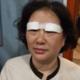 【切开双眼皮+提眉术后当天】自己一直是在整形医院上班的,这么久了,虽然自己只是一名清洁阿姨,但是看着...