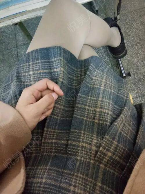 一直坚持穿塑身裤所以没什么反弹,腿的维度也不像刚做完那会每天心急去量,反正看着瘦了比啥都强哈哈哈腿上其实还是有肿,牵扯...