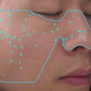 VISIA皮肤检测的日记