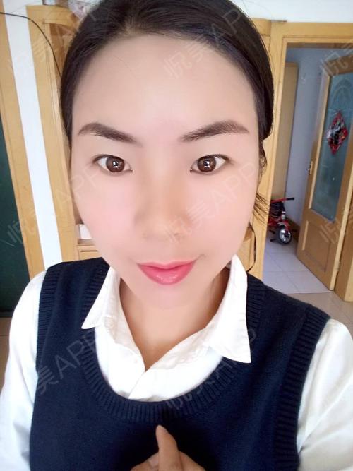 北京京韩整形自体脂肪填充全脸术后3个月,整个面部的饱满度还是很完美,这次手术真的很成功,我现在也喜欢化妆、穿漂亮的衣服,...